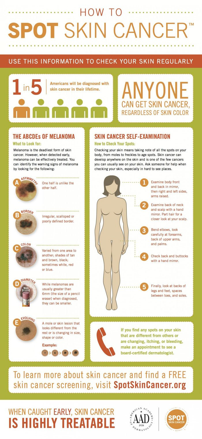 When To Worry About A Mole