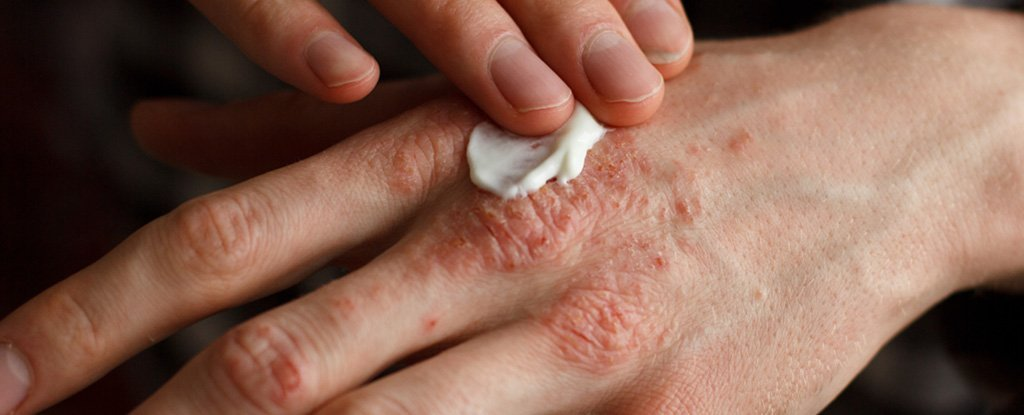 Scientists Think They Finally Know What Happens in The Skin When You Have Eczema