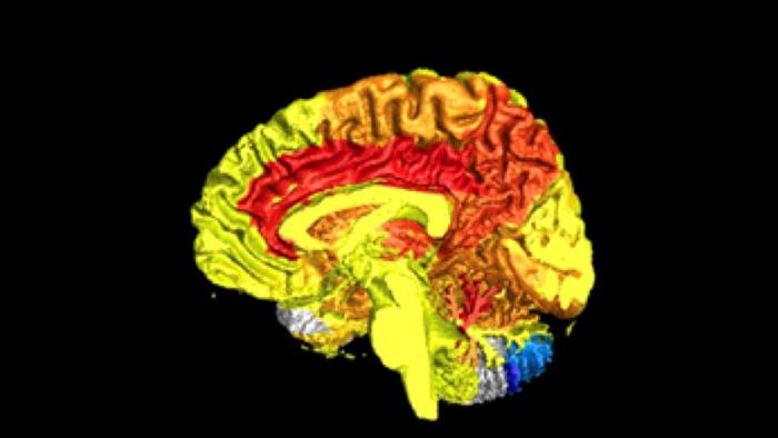 brain blood activity