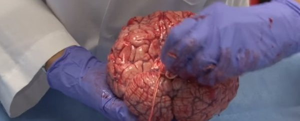 This medical video of a freshly removed human brain is strangely beautiful