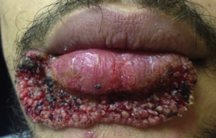 A man extracted a pimple with a carpentry blade and things went horribly wrong
