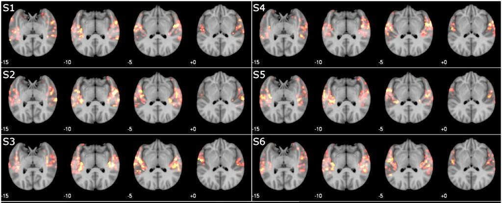 Computers Can Now Tell What Songs You've Listened to Just by Using Brain Scans
