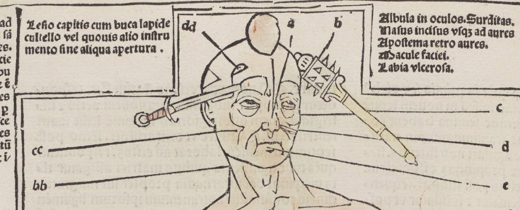 This Rare Book Shows How Insane Medicine Really Was in The 16th Century
