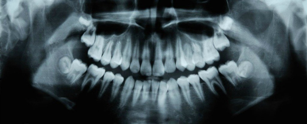 An Alzheimer's Drug Has Been Shown to Help Teeth Repair Cavities Naturally