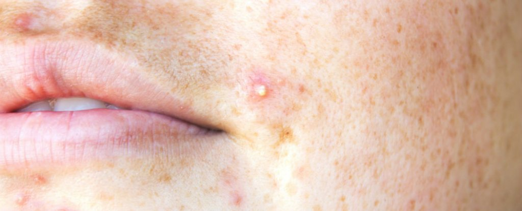 Common Vitamin Has Been Linked to a Higher Risk of Acne