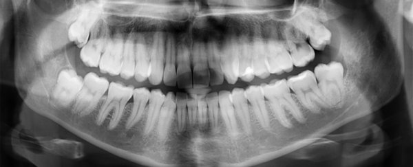 This New Treatment Could Heal Tooth Cavities Without Any