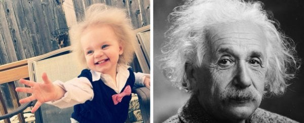 This adorable toddler has 'uncombable hair syndrome', and it's a rare genetic quirk