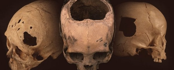 Inca doctors were better at skull surgery than American surgeons 400 years later