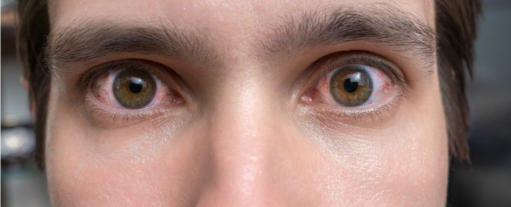 Are Eye Twitches Anything to Worry About, And What Can You Do About Them?