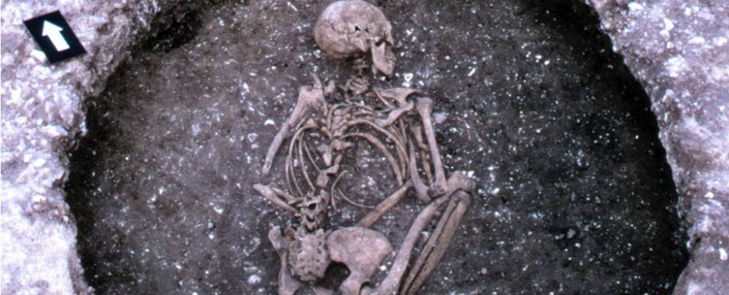 Scientists Trace The Origin of Cystic Fibrosis to a Mysterious Group of Europeans