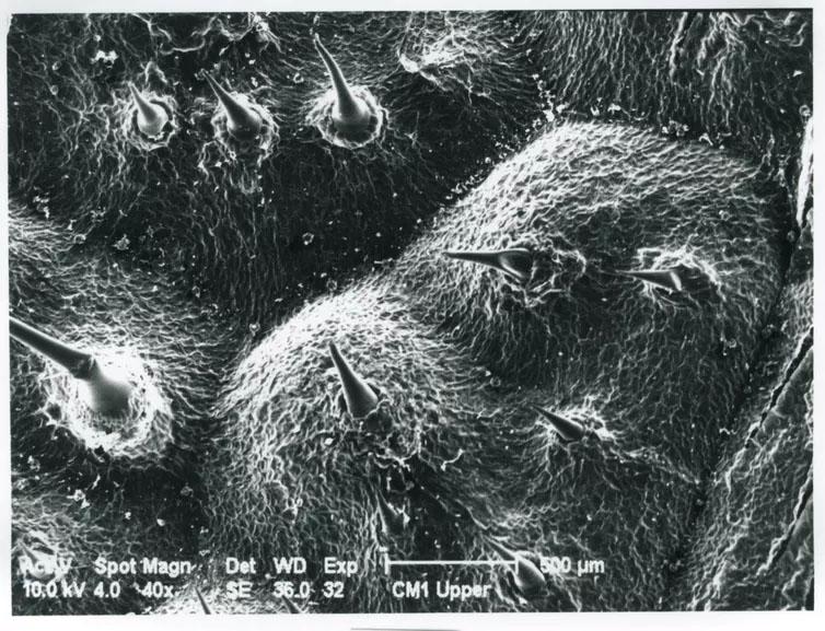 gympie gympie stinging tree micrograph