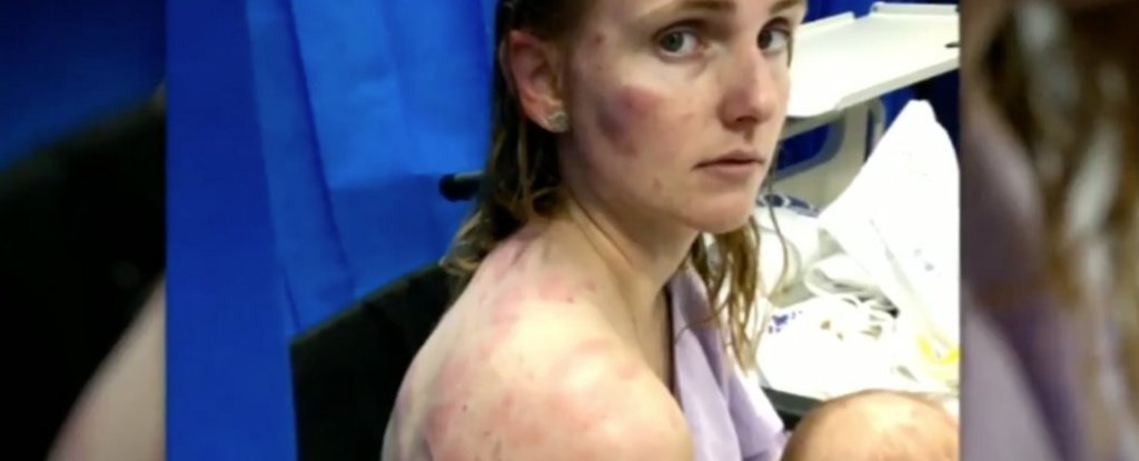 Australian Woman's Bruises Show Why You Should Never Drive in a Hailstorm