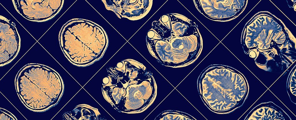 Alzheimer's Should Be Treated as 6 Separate Conditions, Claims New Study