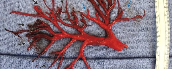 A man coughed up this perfectly shaped blood clot, stunning his doctors