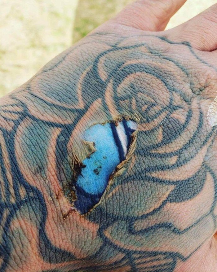 0bfb58731 Reddit Users Are at Each Others' Throats Over This Burnt Tattoo Photo