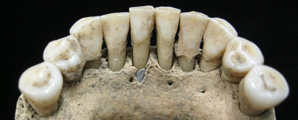 Rare Gemstone Hidden in Ancient Teeth Reveals a Surprising Truth About Medieval Women