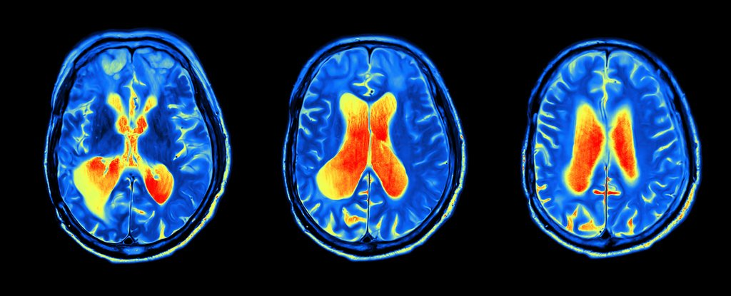 New Drug Trial Takes Different Approach to Stop Alzheimer's