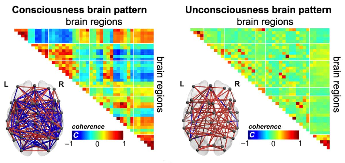 Brain patterns in conscious and unconscious patients