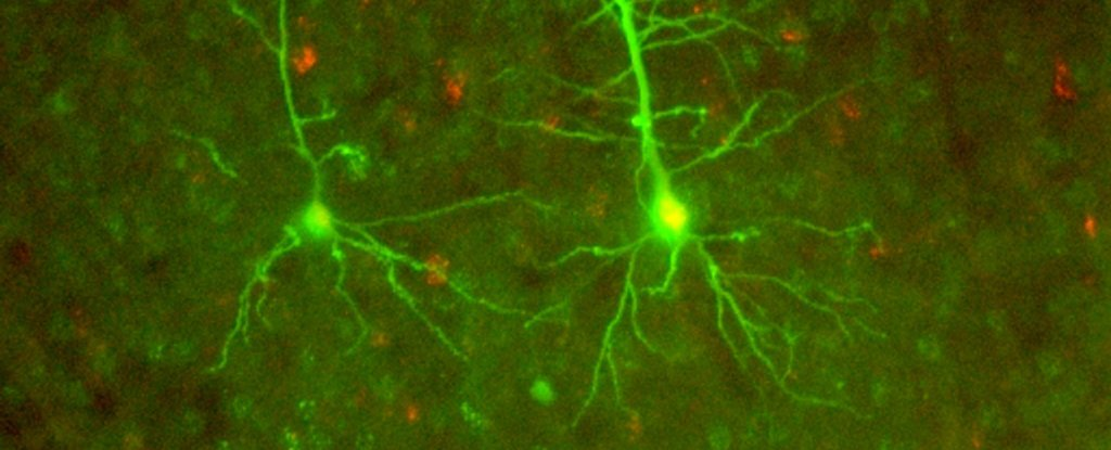 Neuroscientists Say They've Found an Entirely New Form of Neural Communication