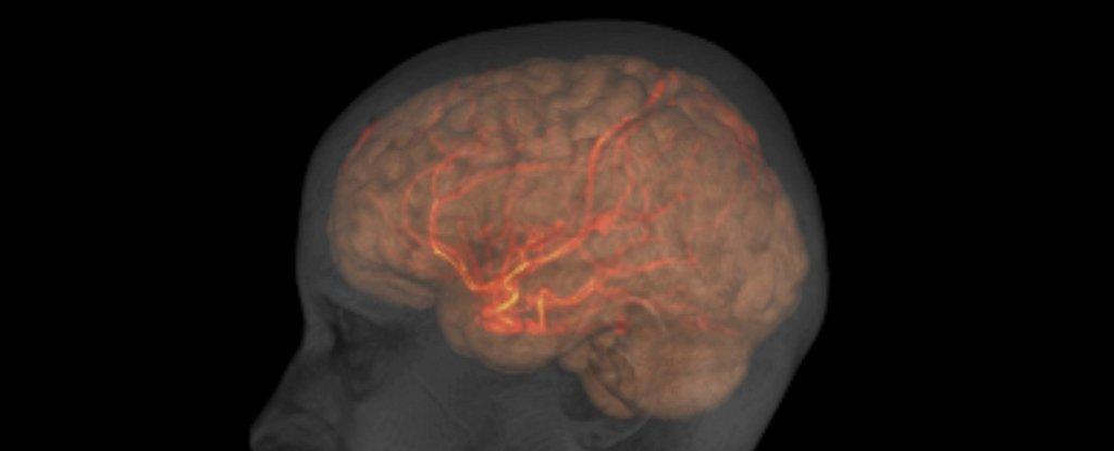 brain-scan_1024.jpg