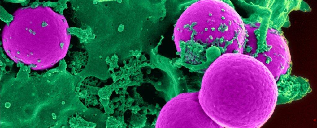 Scientists Have Found an Entirely New Way to Slow Autoimmune Diseases