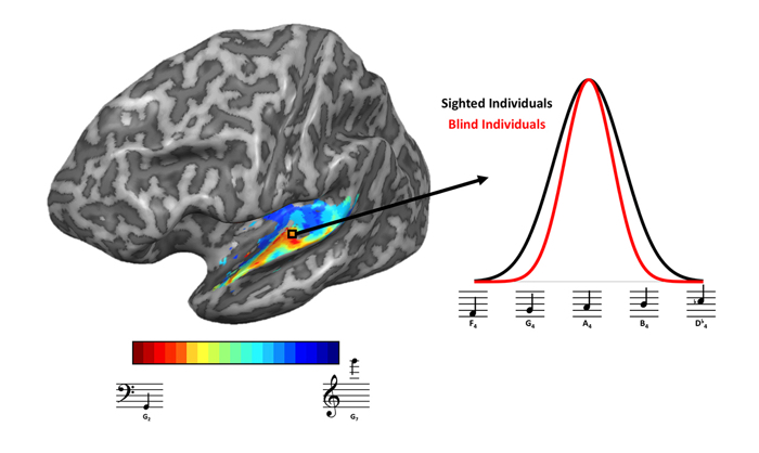 017 mri study confirms blind hearing 1