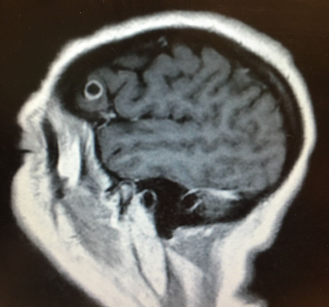 A scan showing the tapeworm in Rachel Palma's brain. (Mount Sinai Health System)