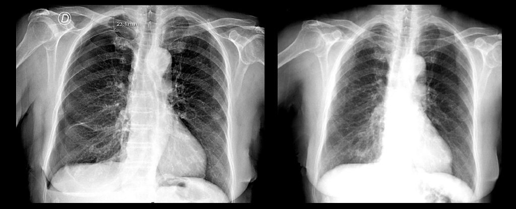 Acupuncture Caused an Elderly Woman's Lung to Collapse