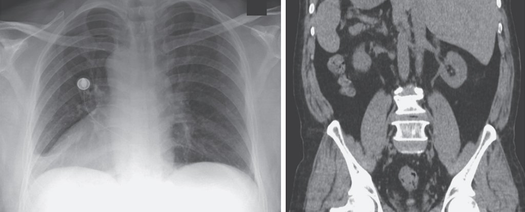 Wild Case Study Reveals 66-Year-Old Man With All His Organs on The Wrong Side