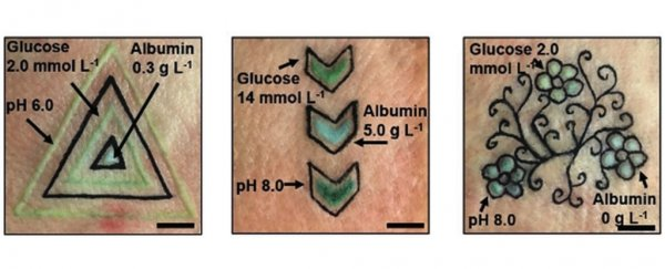 These incredible real tattoos change colour as biomarkers like glucose levels shift
