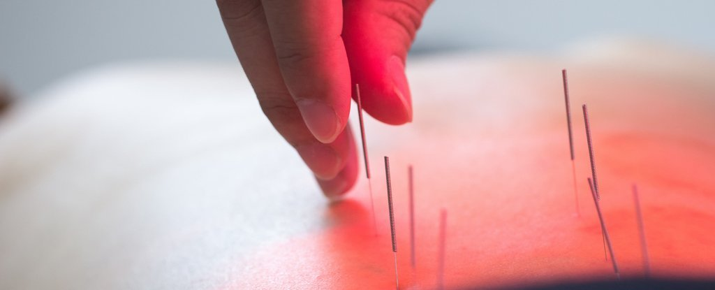 'Extremely Deep' Acupuncture Treatment Ends Up Piercing Patient's Lungs
