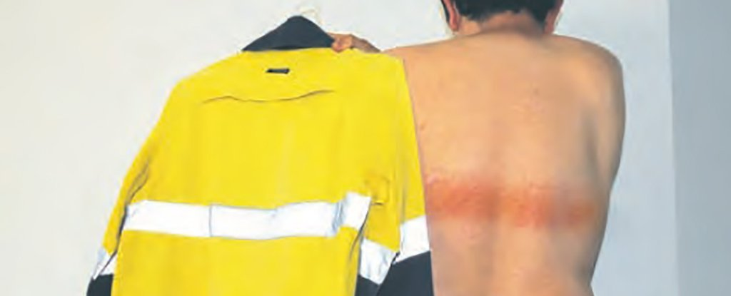 This Man Ended Up With First-Degree Burns From a High-Vis Safety Vest