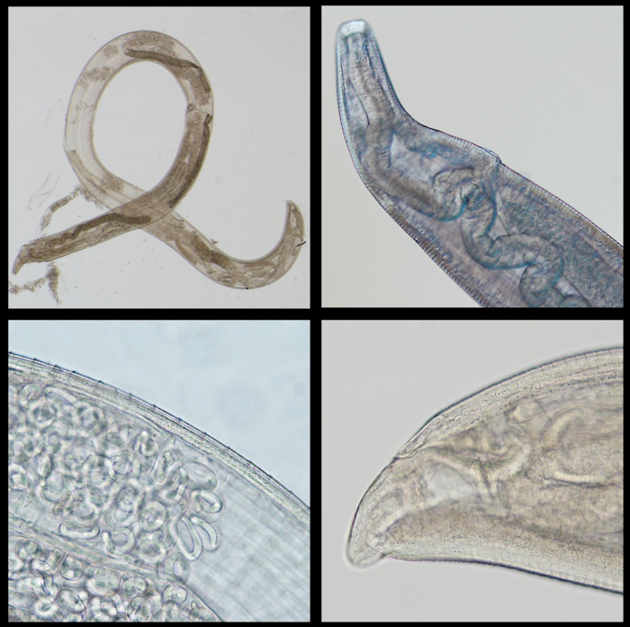 021 parasitic eyeworm 1