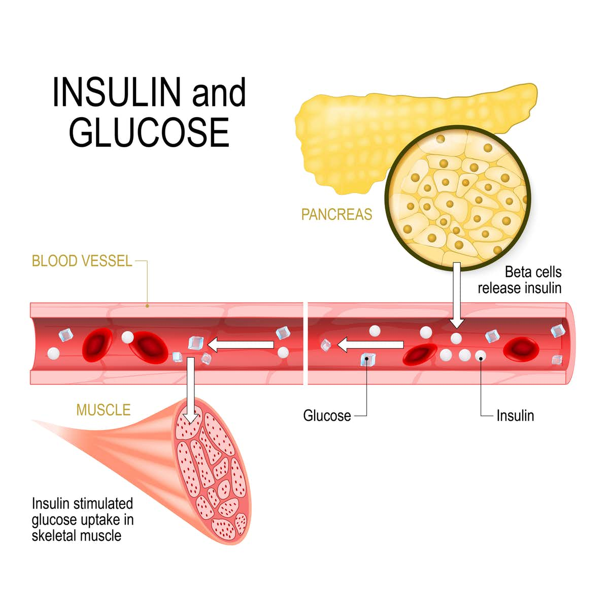 Beta-cells in the pancreas release insulin in the blood vessel. Insulin stimulates the absorption of glucose in skeletal muscle. (Designua/Shutterstock)