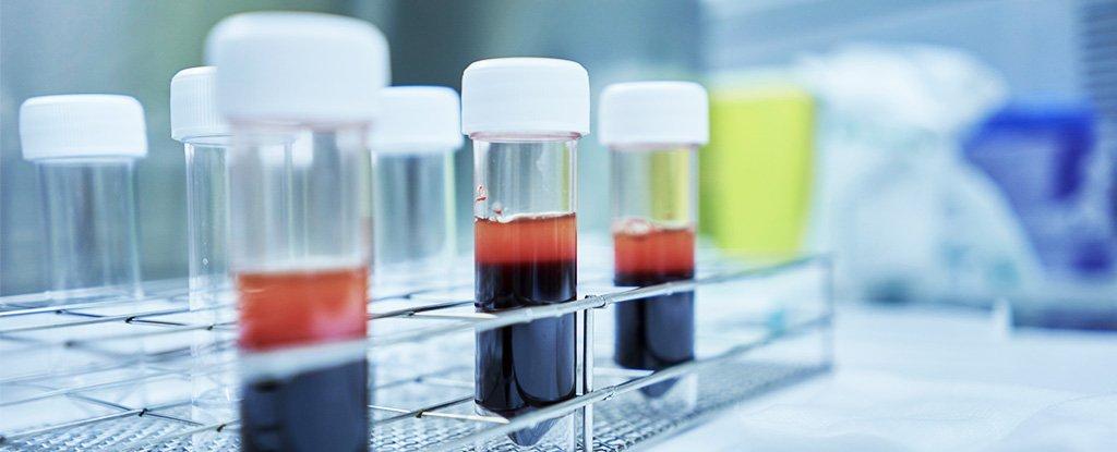 La FDA acaba de aprobar una prueba rápida de coronavirus que puede diagnosticar COVID-19 en 45 minutos 1