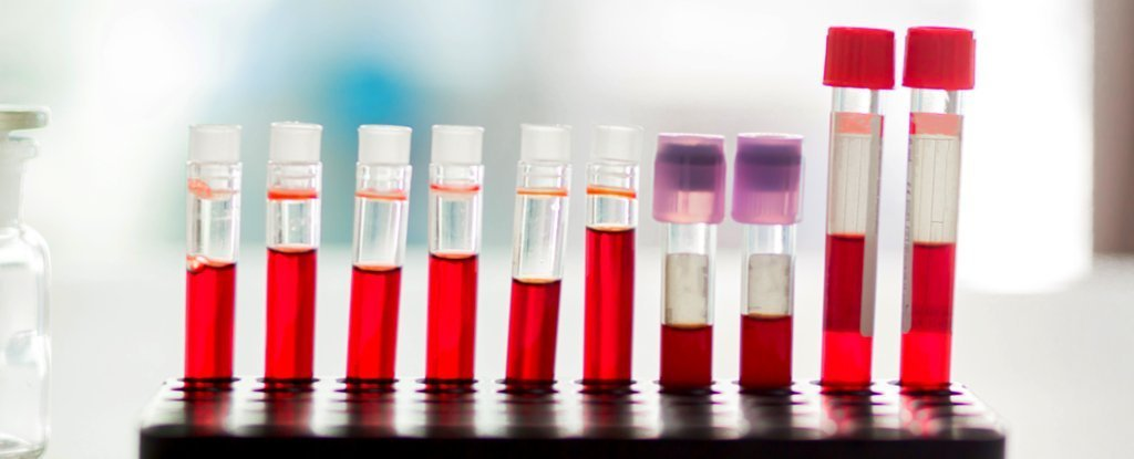 New Blood Test Detects 5 Types of Cancer Years Before Standard Diagnosis