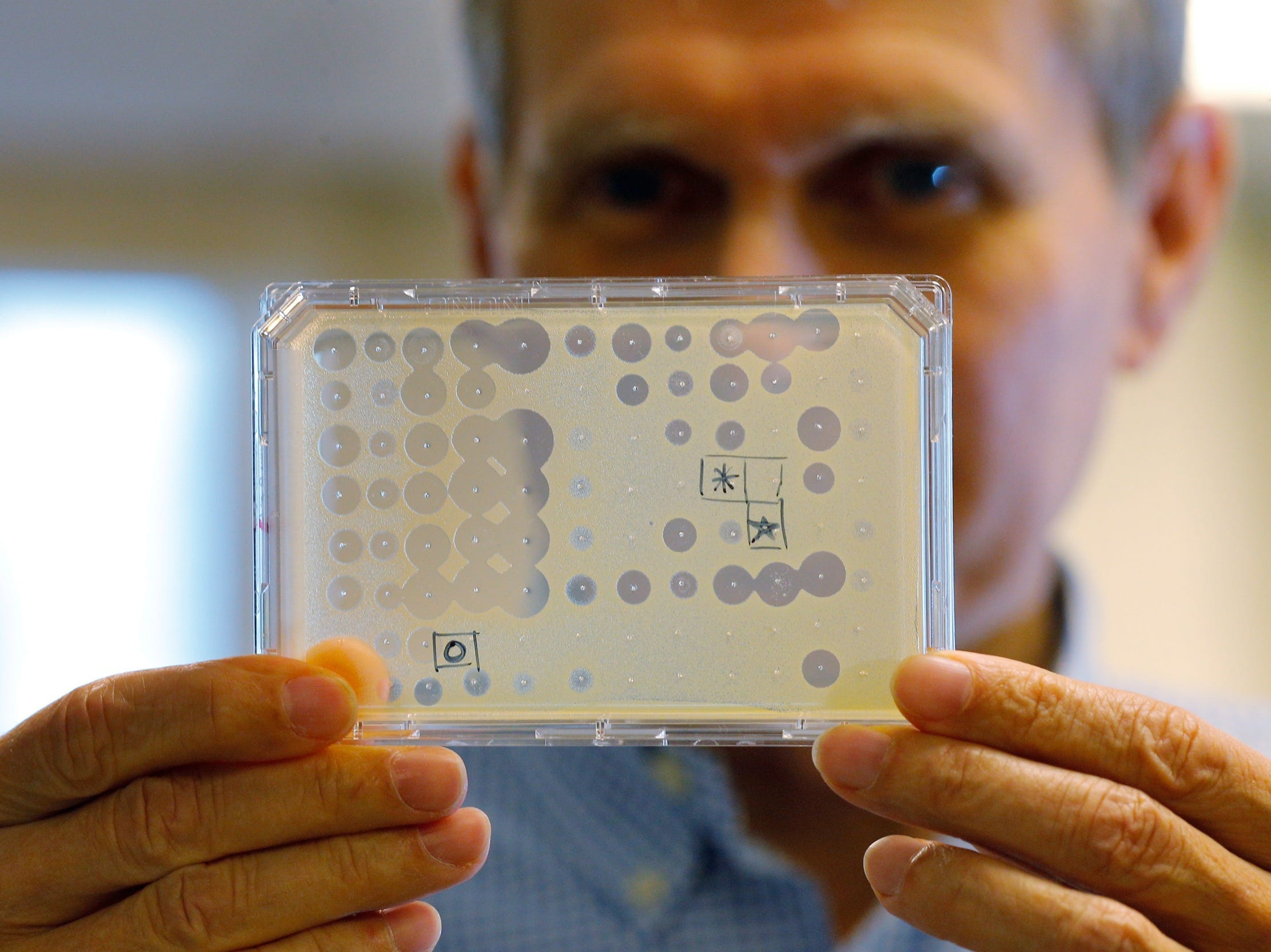 An antibiotic test. (Brian Snyder/Reuters)