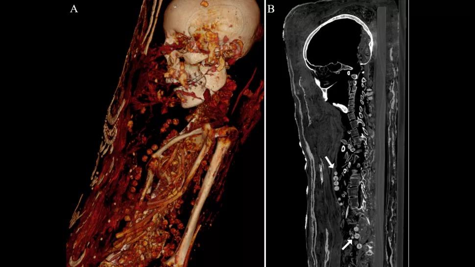 mummy image 2