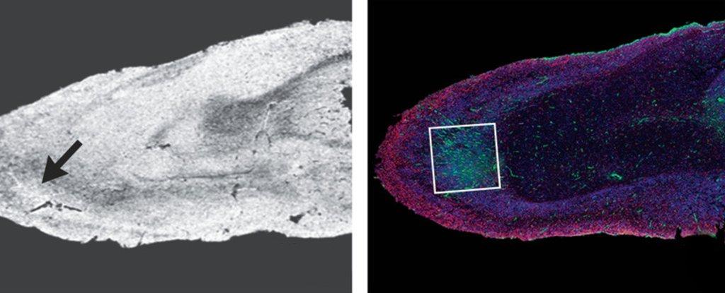 Brain microscopy showing hyperintensities