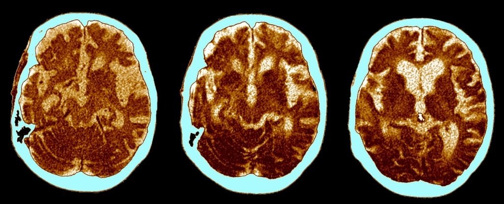 Research says Alzheimer's is actually 3 distinct disease subtypes
