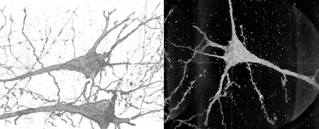 Highly effective X-Rays Reveal Distinctive Variations in Neurons From Folks With Schizophrenia