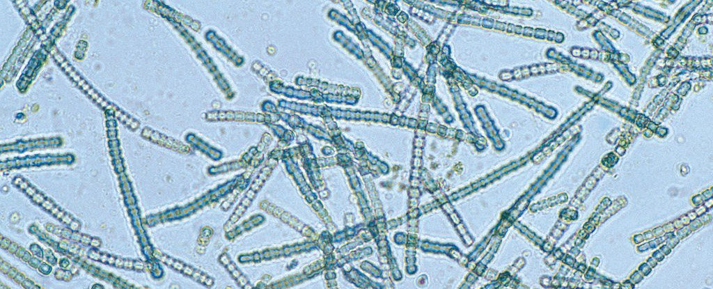 A cyanobacterial species under magnification in 1993.