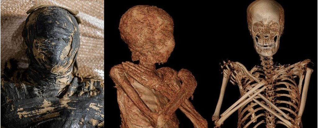 Photo and scans of the mummy.