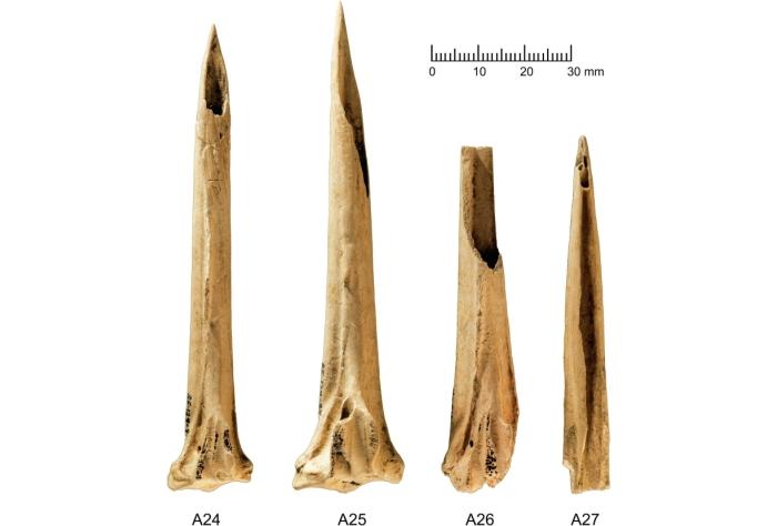 bones leg
