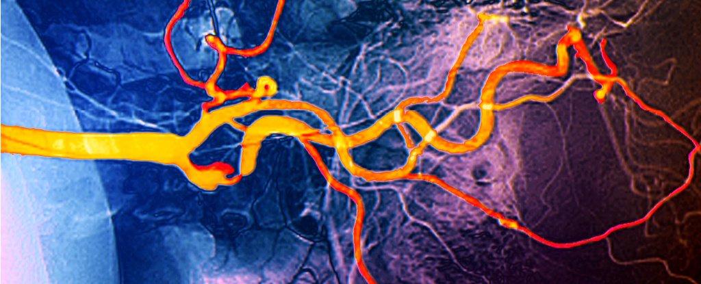 Carotid artery.