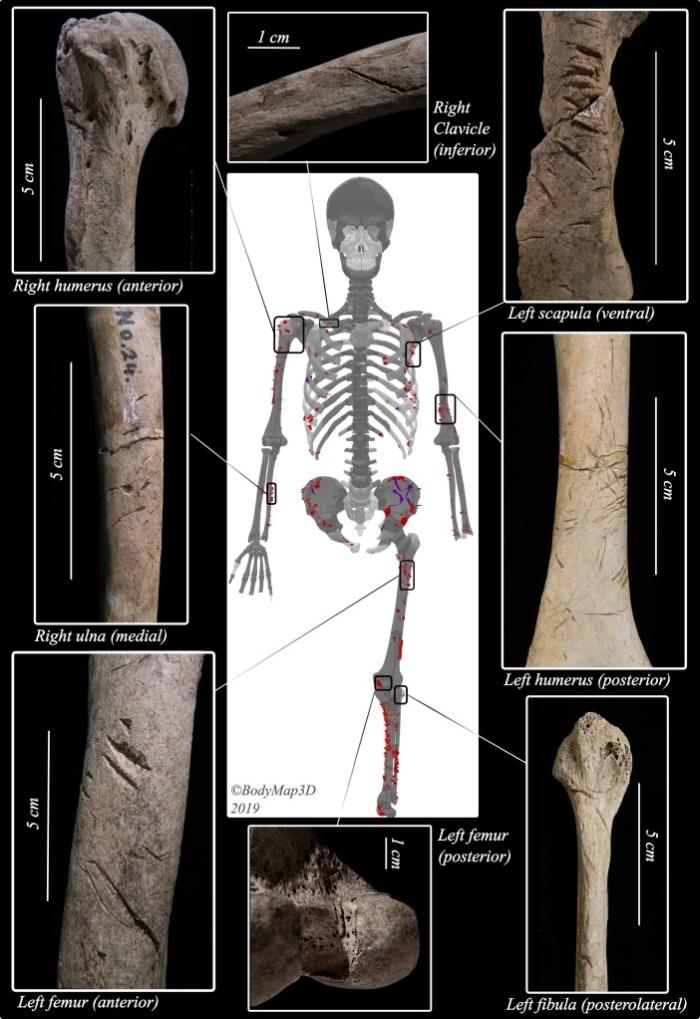 bones bitten