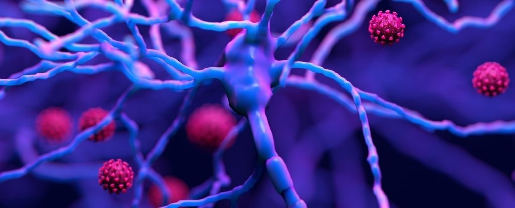 Brain Inflammation From COVID-19 Looks Eerily Similar to That From Alzheimer's