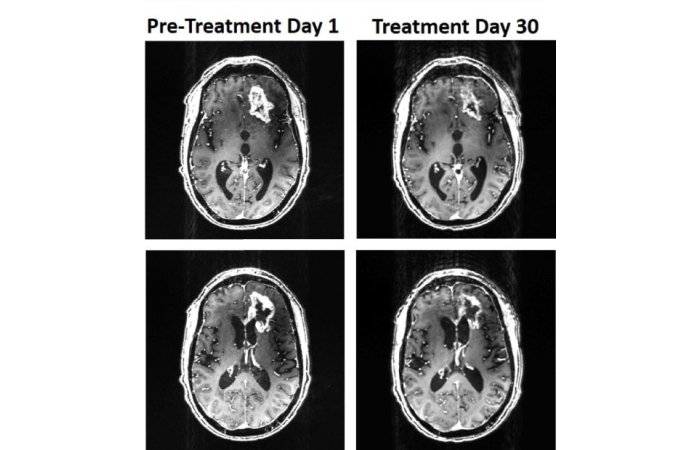 glioblastoma scans from the patient