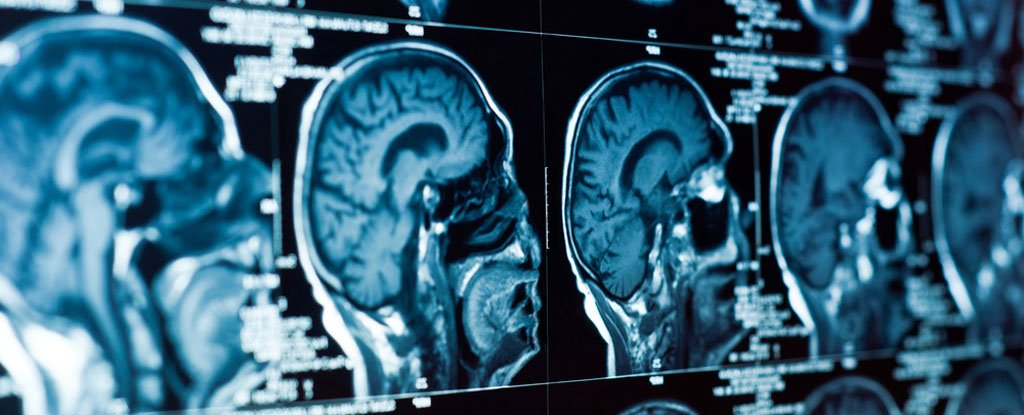 Scientists Say They've Identified The Physical Source of Depression in The Brain