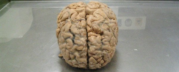 Scientists Are 3D-Printing Tiny Human Brains